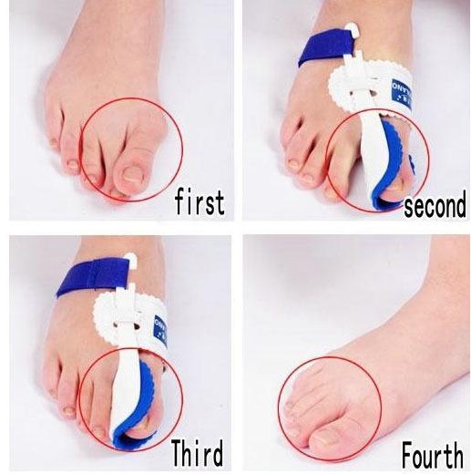 Toe Fix-1
