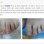 Fungalor – tratament pentru micoza piciorului