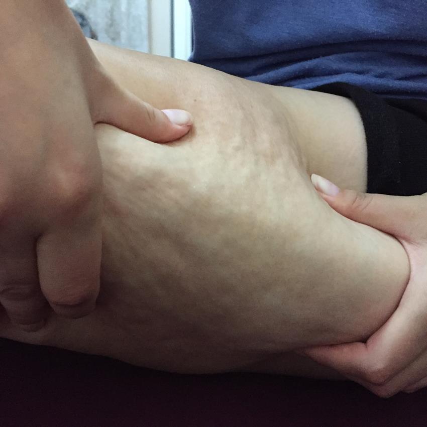 celulita pe picioare 2 slim anticellulite