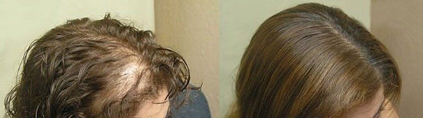 Rezultate Obtinute cu Princess Hair